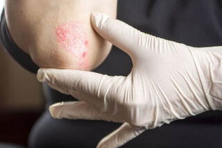 the causes of psoriasis